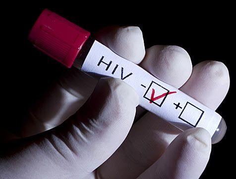Examen detecta VIH en un instante y con unas gotas de sangre