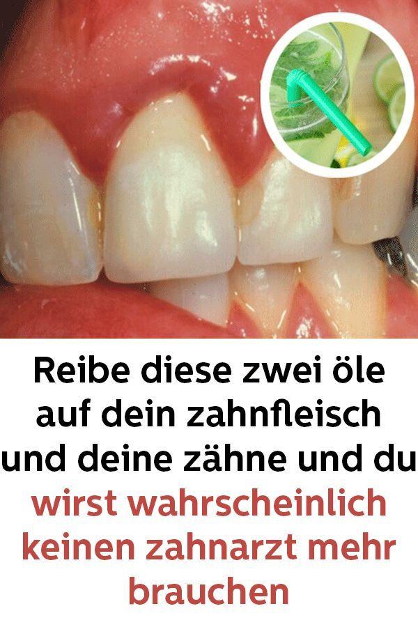 Reibe diese zwei öle auf dein zahnfleisch und deine zähne und du wirst wahrsch… Christiane Heller