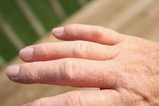 how to get rid of extremely dry hands