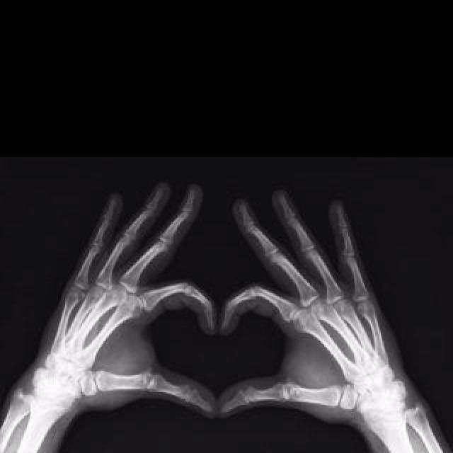 X-ray of a hand doing a heart