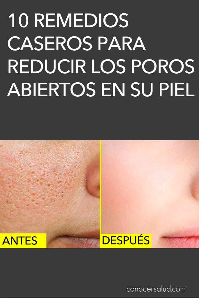 10 Remedios Caseros Para Reducir Los Poros Abiertos En Su Piel Salud How To Grow Eyebrows Natural Beauty Tips Natural Hair Mask