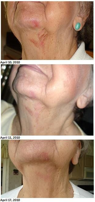 Phyllis Cheeseman's burn after only 8 days of using Jeunesse skincare products. text me at 760-413-6740