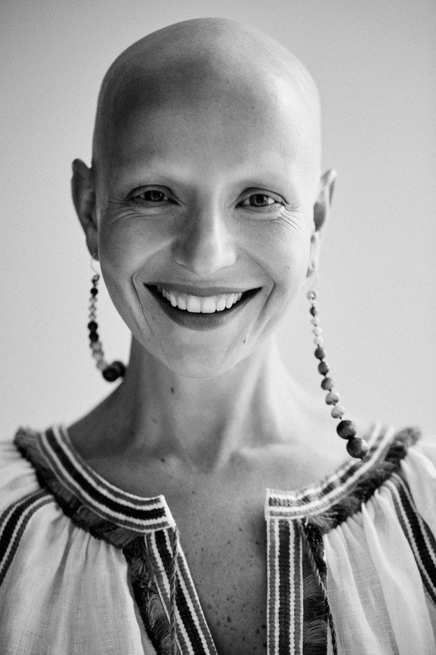Today Vogue unveiled a beautiful portfolio capturing the real-life stories of nine women who've experienced radical hair loss as a part of ongoing health struggles.