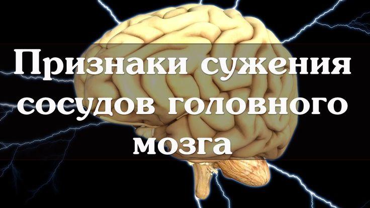 Признаки сужения сосудов головного мозга
