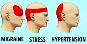 Comment se débarrasser des maux de tête en 5 minutes sans comprimés !