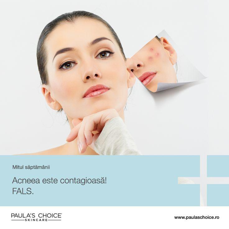 Acneea nu este contagioasă! Tipul de bacterie care cauzează acneea, P. acnes, este o bacterie anaerobă, ceea ce înseamnă că nu iubește aerul sau lumina. Trăiește în straturile inferioare ale pielii și nu iese la suprafață, altfel ar muri. Din acest motiv, acneea nu se poate transfera de la o persoană la alta.