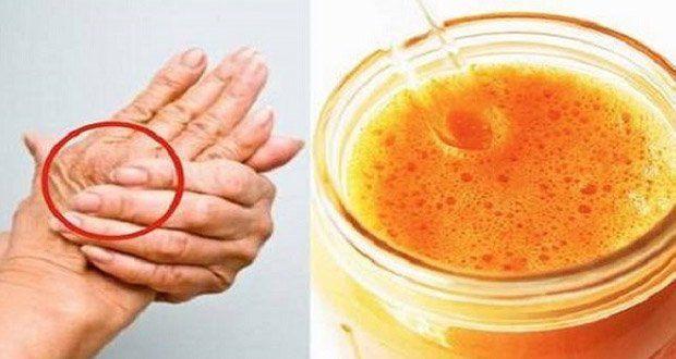 La boisson miracle qui traite l'arthrose et soulage quasi-immédiatement la douleur et l'inflammation !