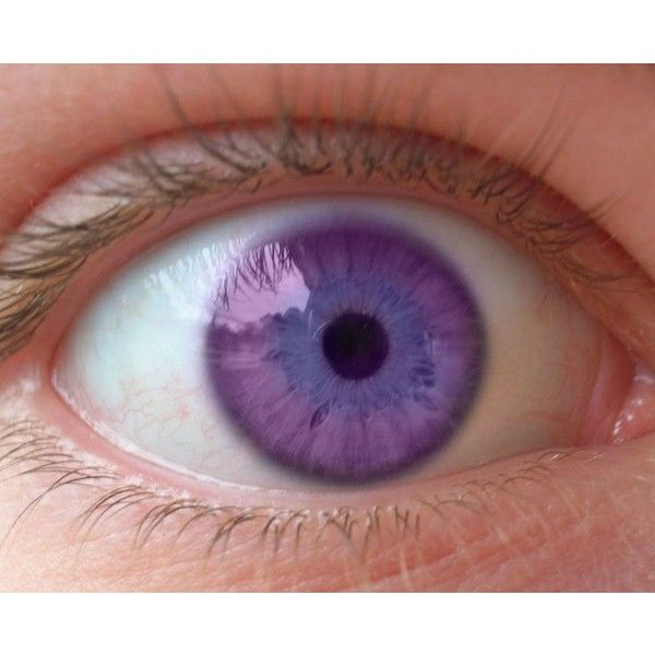 Natural Purple Eyes Disease - Google Search