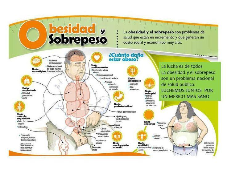 Luchemos juntos por un México sano. ¿Cuánto daña estar obeso?