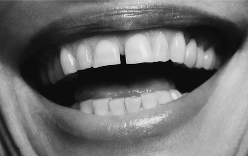 Gap teeth! These belong to the famous gap-toothed grin of Lauren Hutton