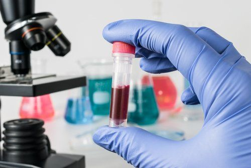 The FDA has approved a new diagnostic tool called the ClearLLab test that can be used for flow cytometry detection of leukemia and lymphoma cells.