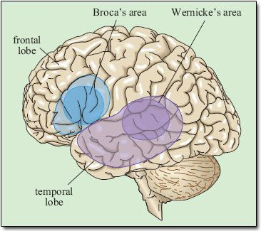 Wernike and Broca areas are the two language areas of the brain. Wernike is involved with recognition and plan of speech and broca generates motor signals to the primary cortex to physically speak. If the broca area is injured/there is a lesion, it is called nonfluent aphasia, or that there is slow speech with difficulty to choose words. If there is an injury/lesion to Wernike, it is called fluent aphasia. Fluent aphasia is when speech is normal and excessive, but makes little sense.