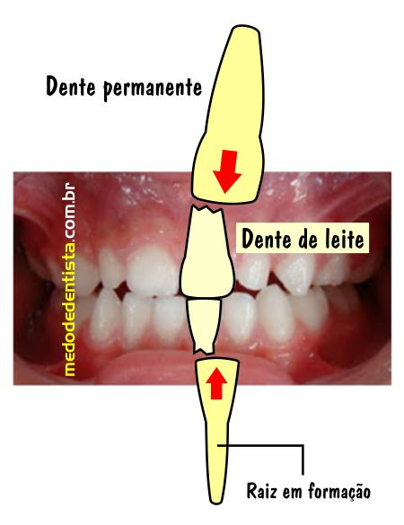Dentes permanentes reabsorvendo as raízes dos dentes de leite