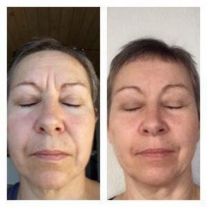 Se her hvilke forandringer efter 1½ månes med Alavida på denne danske kvinde på 51 år #hud #alavida #hudpleje #færrerynker #bløderehud #sundhudindefra