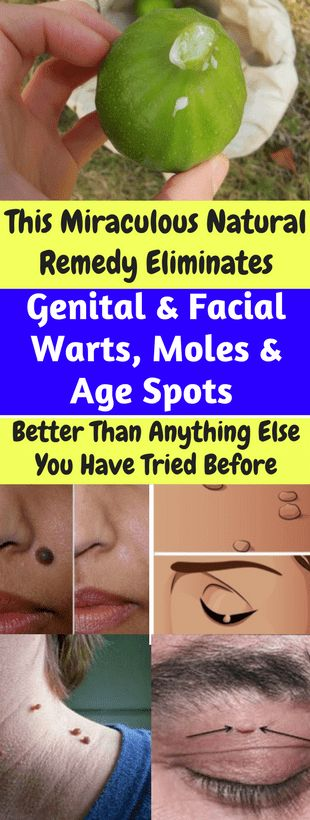 This Miraculous Natural Remedy Eliminates Genital & Facial Warts, Moles & Age Spots Better Than Anything Else You Have Tried Before!!! - All What You Need Is Here
