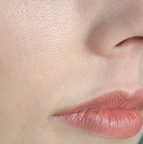 Aujourd'hui je vais vous montrer comment resserrer les pores de la peau (pores dilatés) de manière naturelle afin de paraître beaucoup plus jolie à l'aide de cette recette de grand mère.