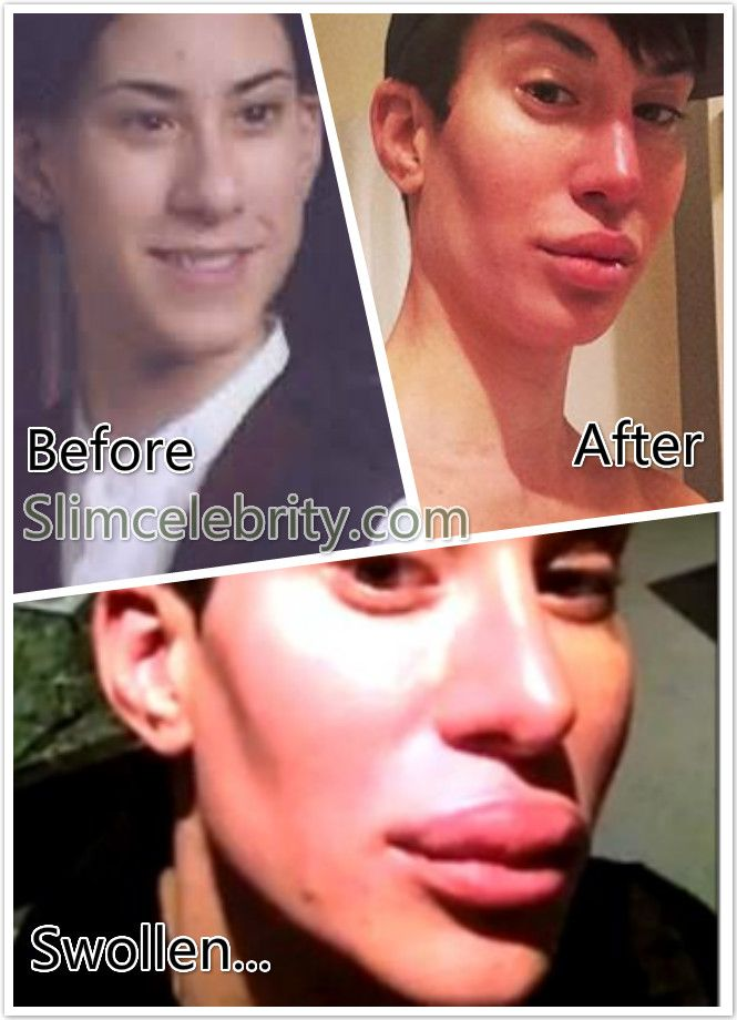 Human Ken Doll Justin Jedlica Plastic Surgery Before and After Photos muscle implants 2