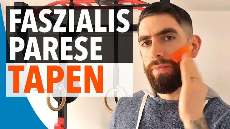 FAZIALISPARESE TAPEN - Kinesiologie-Tape Anleitung für Faszialisparese (...