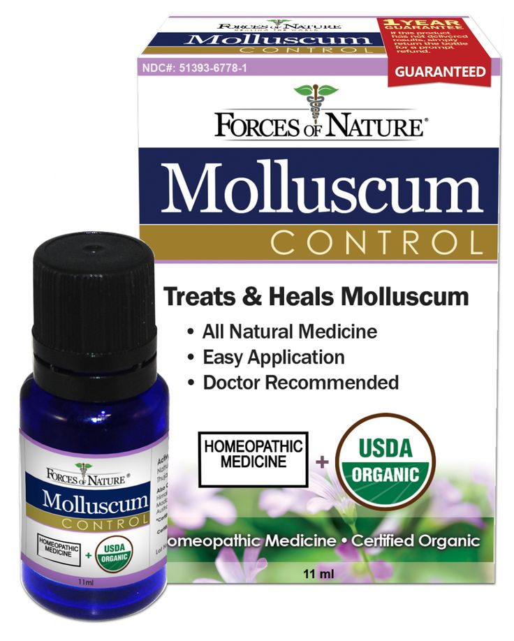 Natural Molluscum Contagiosum Treatment  Molluscum -2787