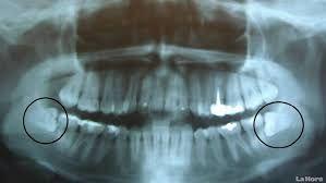 Resultado de imagen para fotos de terceros molares