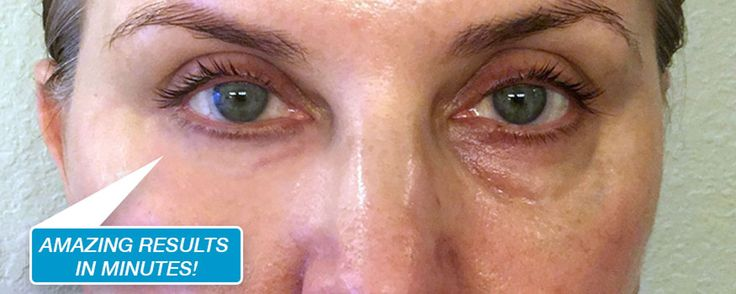 Amazing under eye results with Instantly Ageless