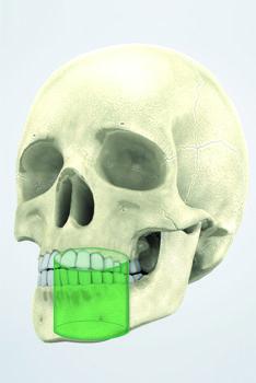 Digitale Volumentomographie, kleines Volumen 5x5 cm In der Endodontie, Parodontie, Implantologie und zur Lokalisierung von Inklusionen verwendet.  Mehr zur digitalen Volumentomographie in der Zahnmedizin unter www.dvt-akademie.de