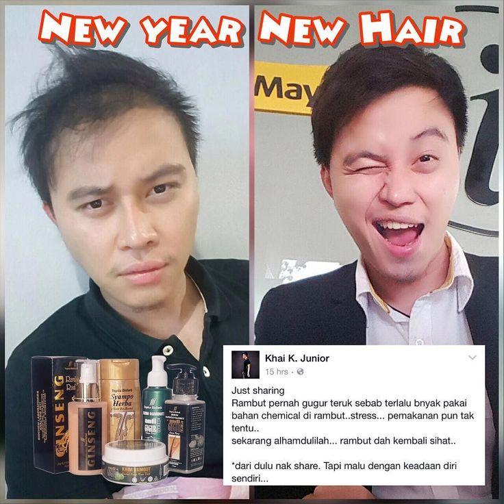 New Year New Hair  Dulu rambut nipis jarang & bnyk gugur. . Skrg dh makin lebat & makin hensem. . Inilah kehebatan produk PRG. . Produk yg dijamin kualiti & keberkesanannya merawat serta melebatkan rambut. . Jom whatsapp kami utk dapatkan rambut baru anda skrg!! . whatsapp : 012-6868 983  #pelebatrambutno1malaysia  #pakarrambutgugur #botak #rambutnipis #rambutlebat #rambutsihat #rambutbotak