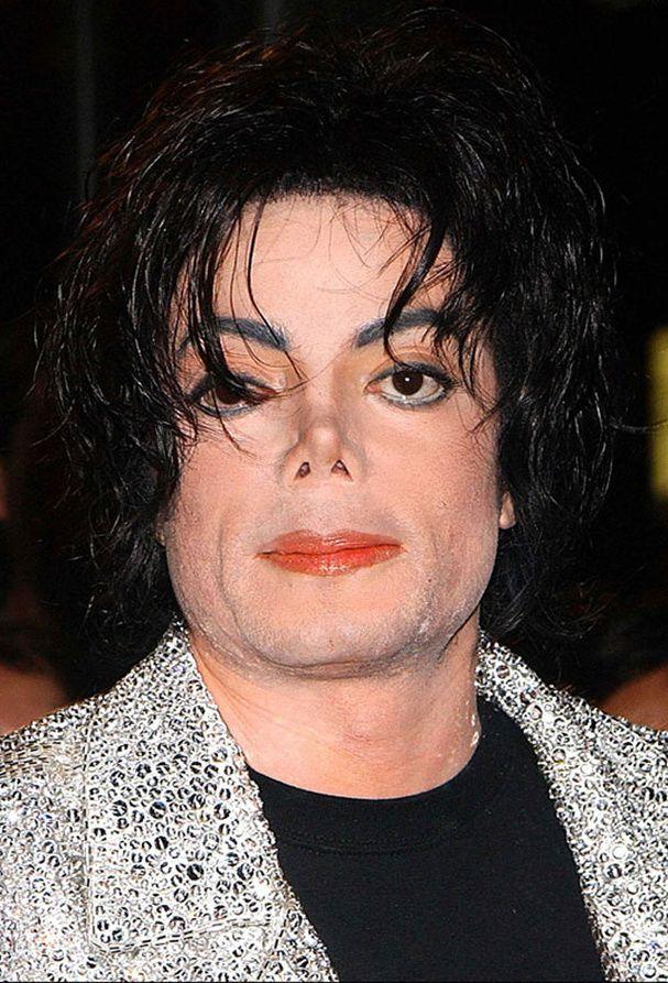 APRES : le visage de Michael Jackson Le nez, des implants aux pommettes, une fente sur le menton et un blanchiment de la peau, le roi de la pop avait multiplié les opérations pour enfin s'accepter.
