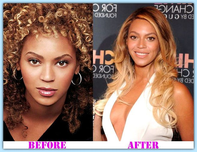 Beyonce plastic surgery before and after Beyonce Plastic Surgery #Beyonceplasticsurgery #Beyonce #psycwellness