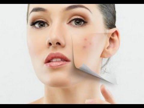 aceite rosa mosqueta cara acne