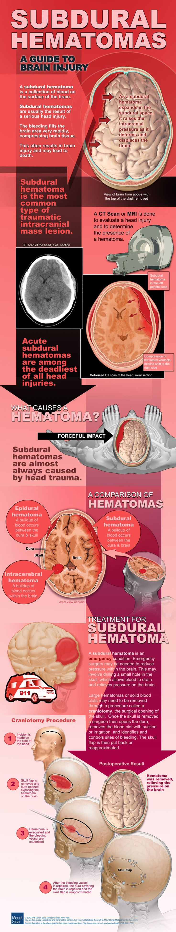 A Guide to Brain Injury and Subdural Hematoma  #Infographic #infografía