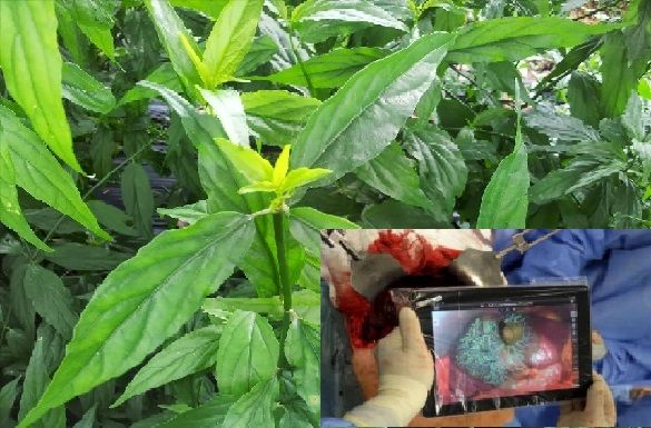 Kabar Gembira ..!! Kini Daun Belalai Gajah,,,Obat Alternatif Kanker Stadium 4 Paling Ampuh..!! Tolong Sebarkan Demi Kesehatan Bersama..!!! ...
