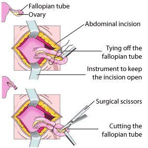 http://www.explain-health.com/tubal-ligation-side-effects-tubes-tied.html