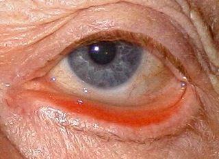L'ectropion (rotazione verso l'esterno del margine della palpebra inferiore) è causato da iperlassità tissutale correlata all'età, paresi del VII nervo cranico ed esiti post-traumatici o post-chirurgici. I sintomi clinici comprendono lacrimazione (dovuta all'insufficiente drenaggio delle lacrime attraverso il sistema nasolacrimale non più a contatto con la superficie del bulbo oculare) e sintomi di occhio secco, che possono essere dovuti ad ammiccamento inefficace. La diagnosi è clinica.