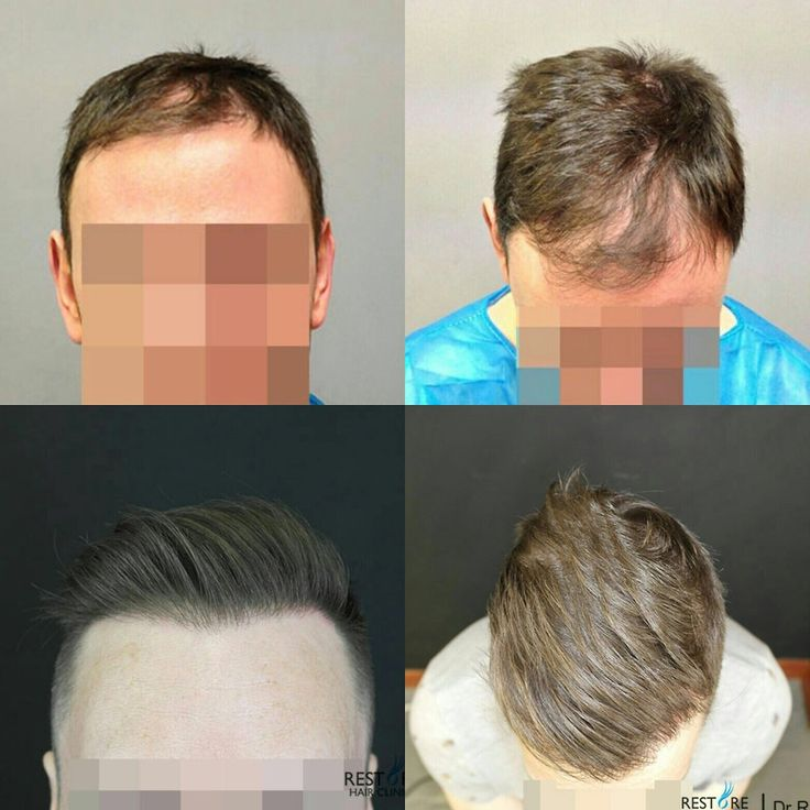 Before and after FUE hair transplant by Dr Raghu Reddy