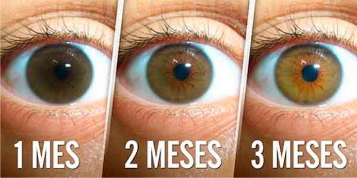 Una catarata es una opacidad en el cristalino del ojo que dificulta la visión y es progresiva e indolora.   Las cataratas no son una en...