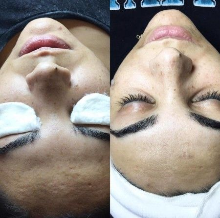 How long does it take for the skin to completely peel off using the Jessner peel?