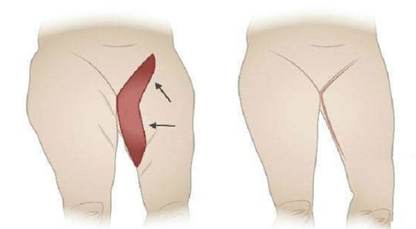 Here are some of the most helpful tips how to lose inner thigh fat: