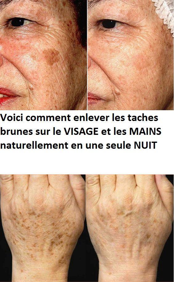 Voici Comment Enlever Les Taches Brunes Sur Le Visage Et Les Mains Naturellement En Une Seule Nuit Medical Cosmetics