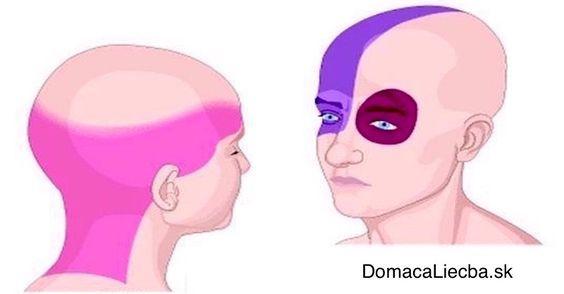 Zmiernite bolesť hlavy za pár minút bez ohľadu na to, aká je silná