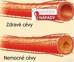 Ucpané cévy, cholesterol