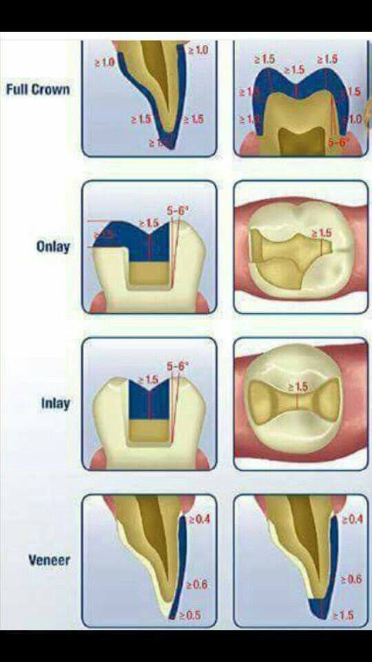 Tooth preparation for inlay, onlay, veneer and full dental crown