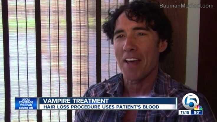 Vampire PRP Hair Regrowth on NBC WPTV w/ Dr Alan Bauman in Boca Raton, FL. Platelet Rich Plasma is a in-office non-invasive 'lunch-hour' treatment for hair loss with proven results.