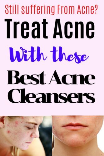 Best Acne Cleanser Reviews-Best Washes For Acne
