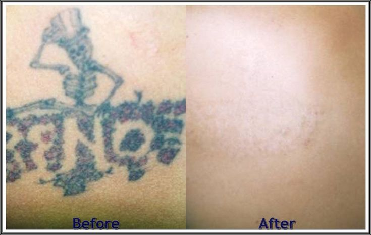 removing a tattoo, how much does tattoo removal cost, tatto remove, does tattoo removal work, remove tattoo, tattoo removal cream, #tattoo #removal before and after, laser tatoo removal, tattoo removal reviews, permanent tattoo removal, removing #tattoos, tattoo removal ink, does tattoo removal cream work, can a tattoo be removed, cost  laser  tattoo  removal, tattoo remover, ways to remove tattoos, how does tattoo removal work, tattoo removals, tattoos removed, does tattoo removal hurt