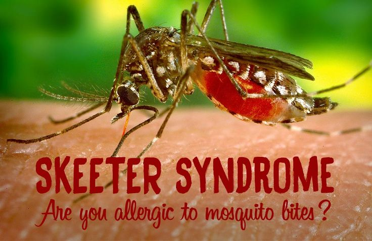 "Do you know anyone who is very sensitive to mosquito bites?  It's called ""skeeter syndrome"". Here are a few natural remedies that can help soothe the symptoms: http://www.optiderma.com/articles/skeeter-syndrome-allergy-mosquito-bites/  Make sure you have some lavender essential oil or a calendula cream at home!"