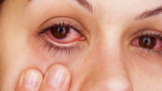 How to get rid of pink eye? Remedies for pink eye treatment. Cure pink eye at home. Ways to heal pink eye. Avoid pink eye, Methods to prevent pink eye.