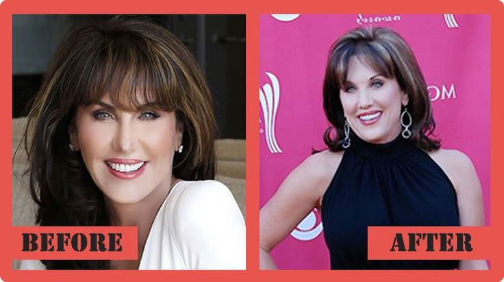 Robin Mcgraw Plastic Surgery - The Rumors About Her Knife Job #‎RobinMcgrawPlasticSurgery‬ ‪#‎RobinMcgraw‬ ‪#‎celebritypost‬