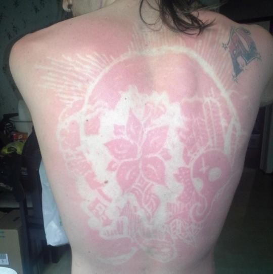 Sunburn Art Is Now Apparently a Thing (Yikes)