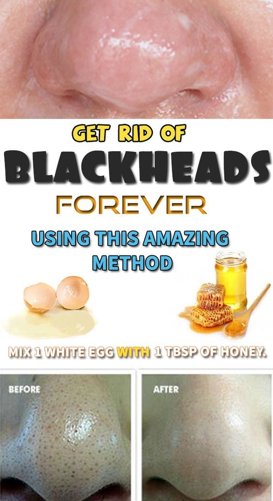 Blackheads usually form on the surface of your skin